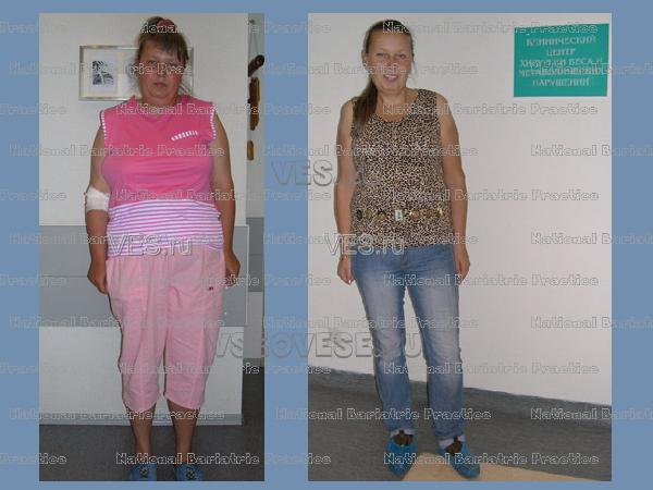 прописала цераксон, баллонирование желудка фото до и после широкоформатные обои, картинки